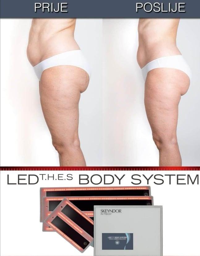 Skeyndor aparat za oblikovanje tijela - od sada u studiu Divus!