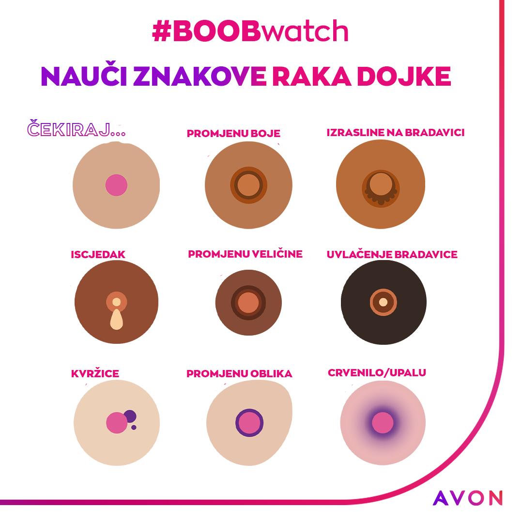 Globalnom kampanjom #BOOBwatch Avon poziva na redovan pregled dojki!