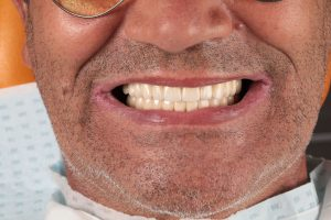 Novi zubi