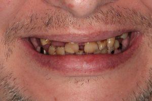 Zubi prije implantata